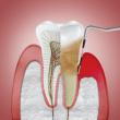 Laserul, tratamentul modern pentru boala parodontală